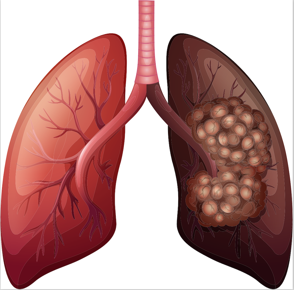 Traitement Cancer du poumon