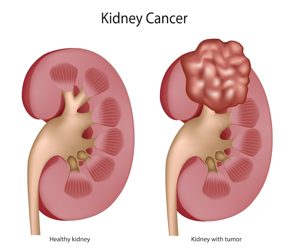 Traitement Cancer du Rein