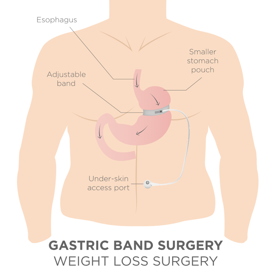Installation of a gastric ring