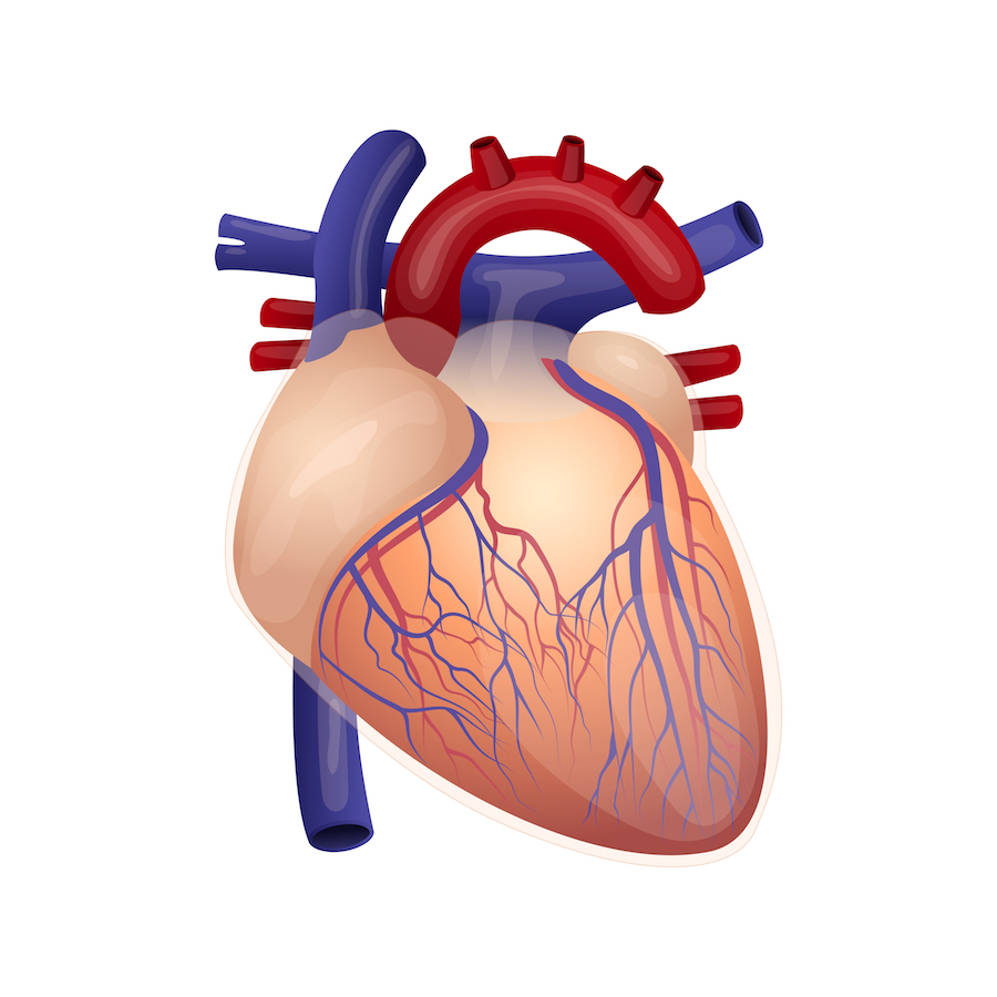 Coronary bypass surgery (CABG)