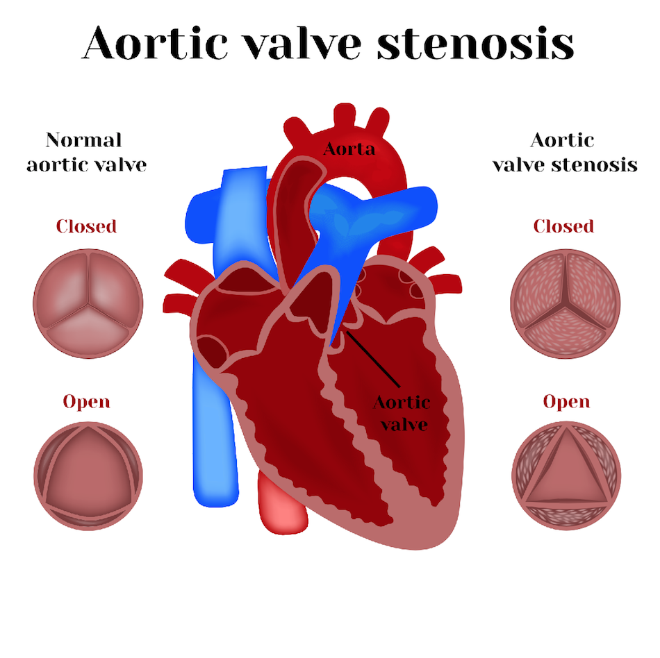Aortic Valve Replacement (AVDR)